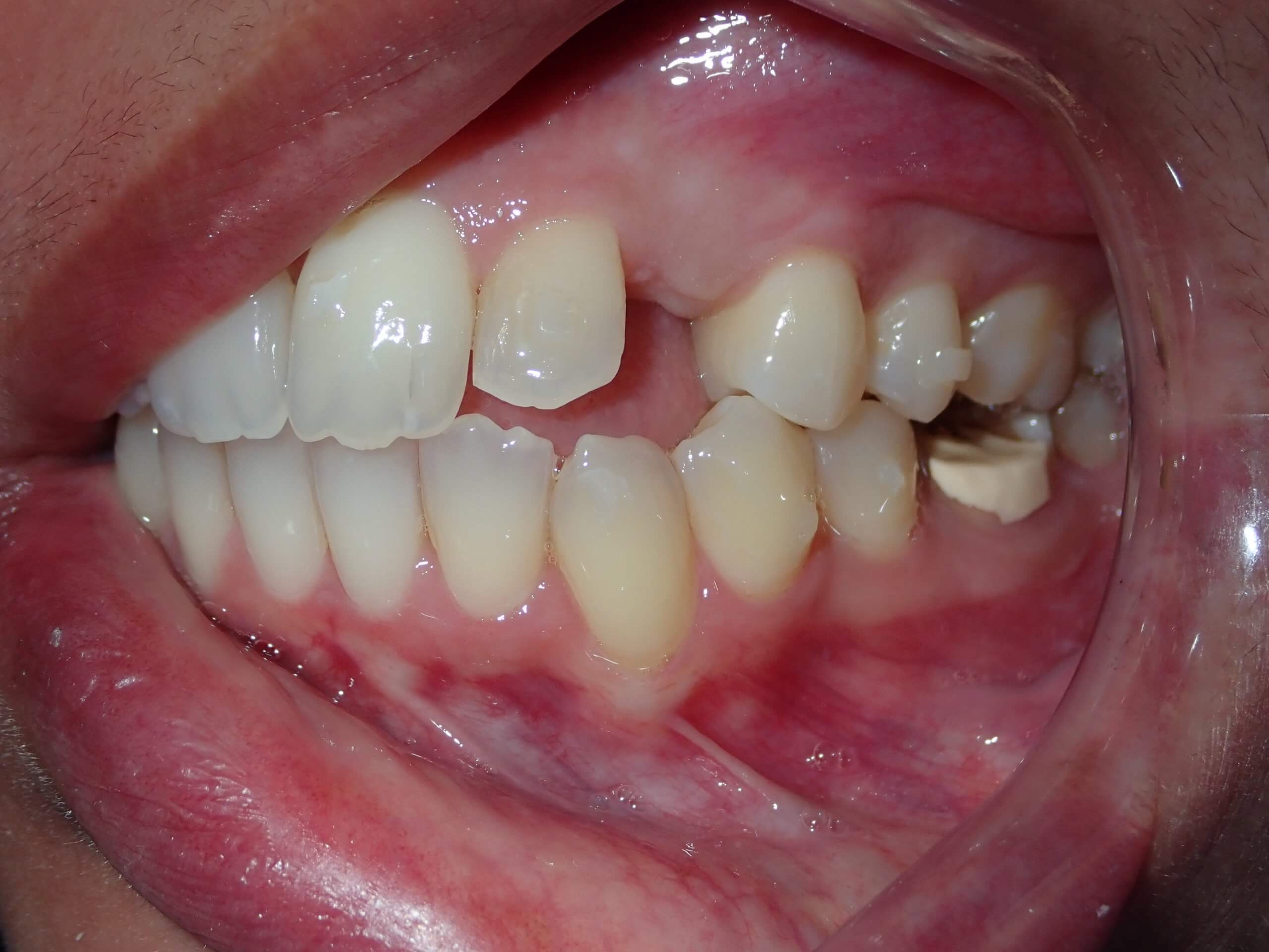 before dental implants 1