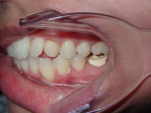Close-up photograph of a persons teeth before getting dental implants.