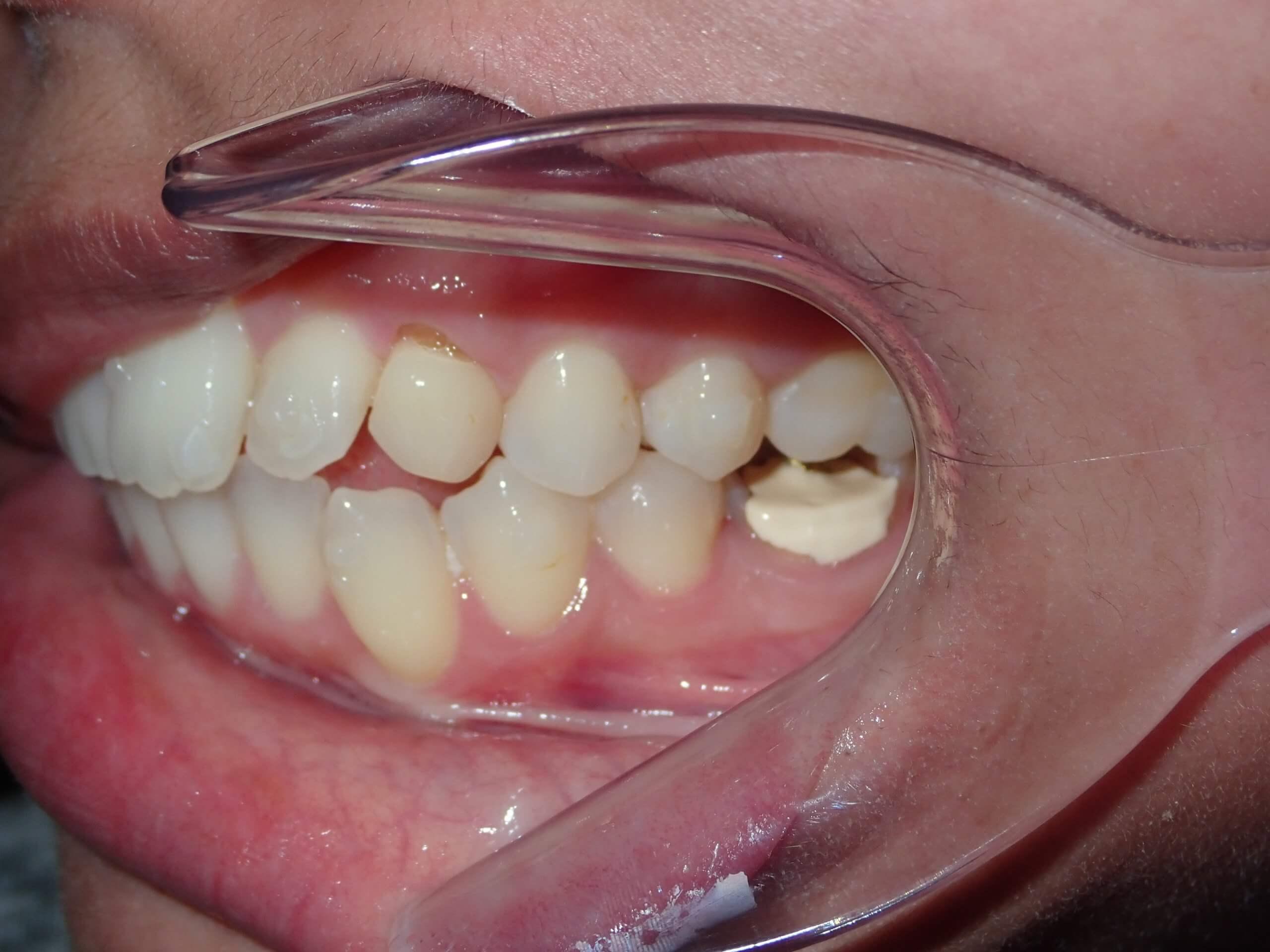 after dental implants 2
