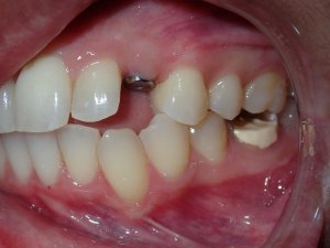 Close-up photograph of a persons teeth after getting dental implants.