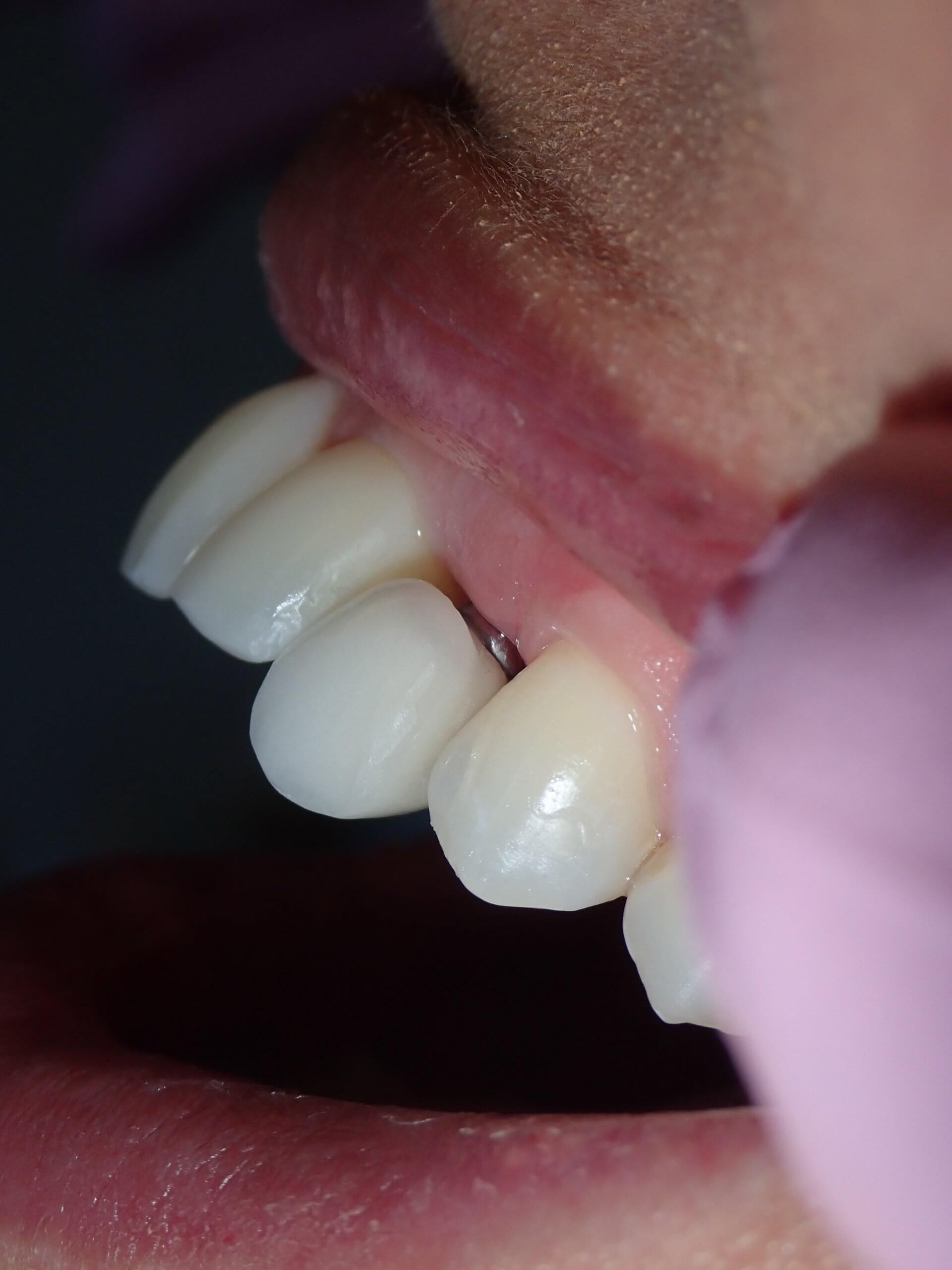 before dental implants 2