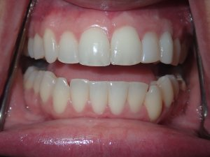Front-view photograph of a persons teeth after getting dental implants.