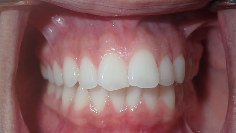 after cosmetic dentistry 2