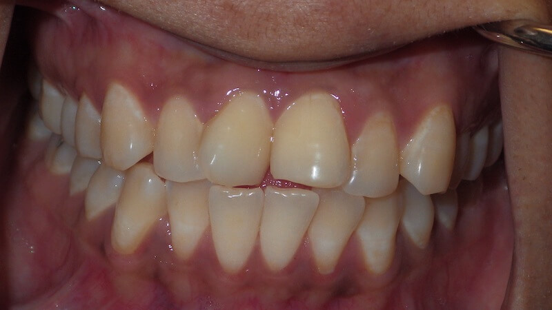before cosmetic dentistry 2