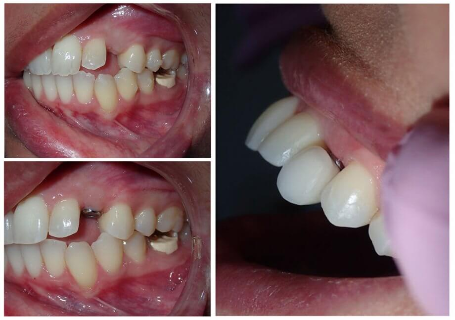 collage of three pictures showing dental implant procedure