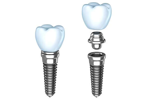Dental Implants Lodi, NJ