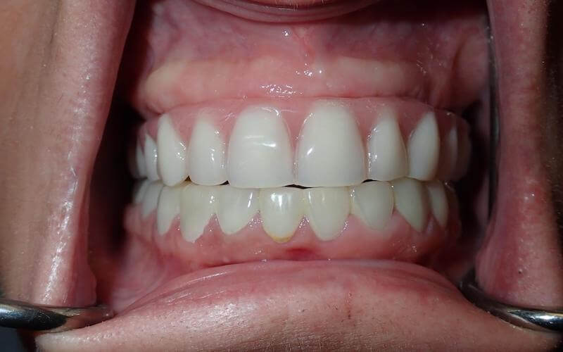 after dental implants 2