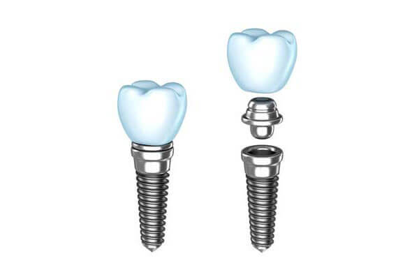 Implant Dentistry Lodi, NJ
