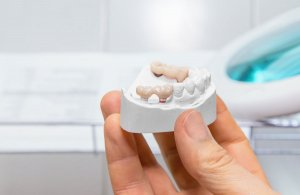 Dental Implant Alternatives