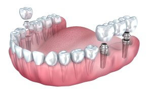 Dental Implant vs Bridge Cost