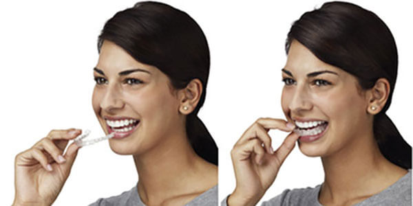 Invisalign Braces Lodi, NJ
